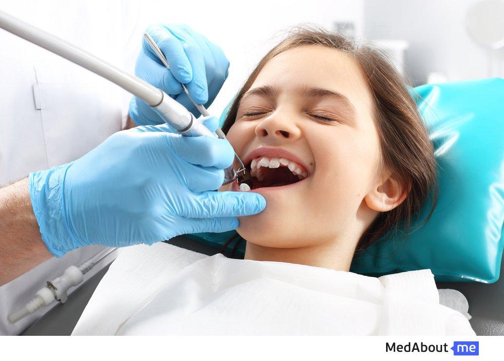 Как лечат кариес детям на постоянных зубах