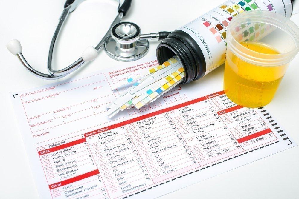 Нормы уровня лейкоцитов в моче