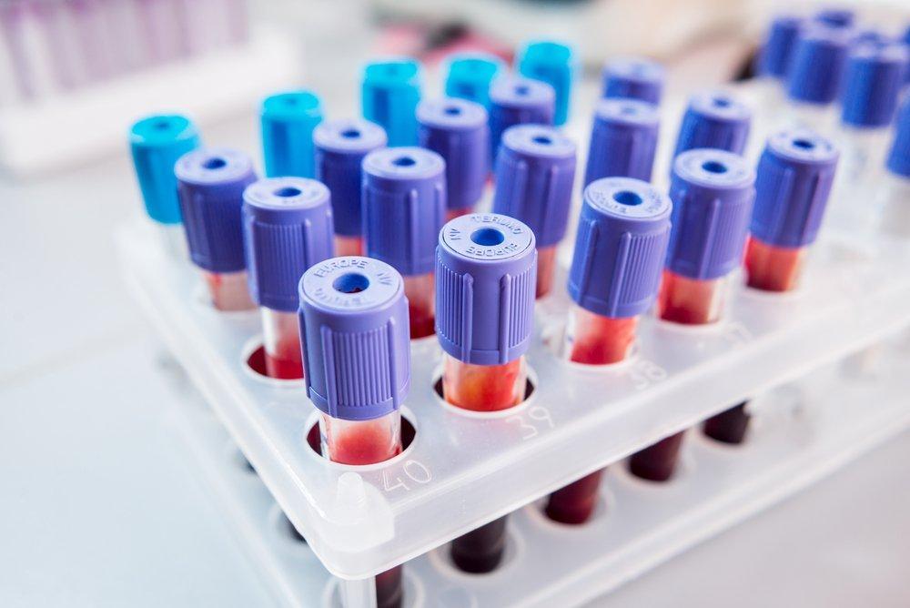 Повышение билирубина в крови