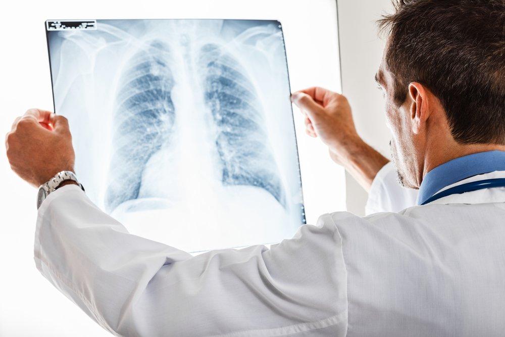 Виды пневмонии при гриппе: симптомы и лекарства