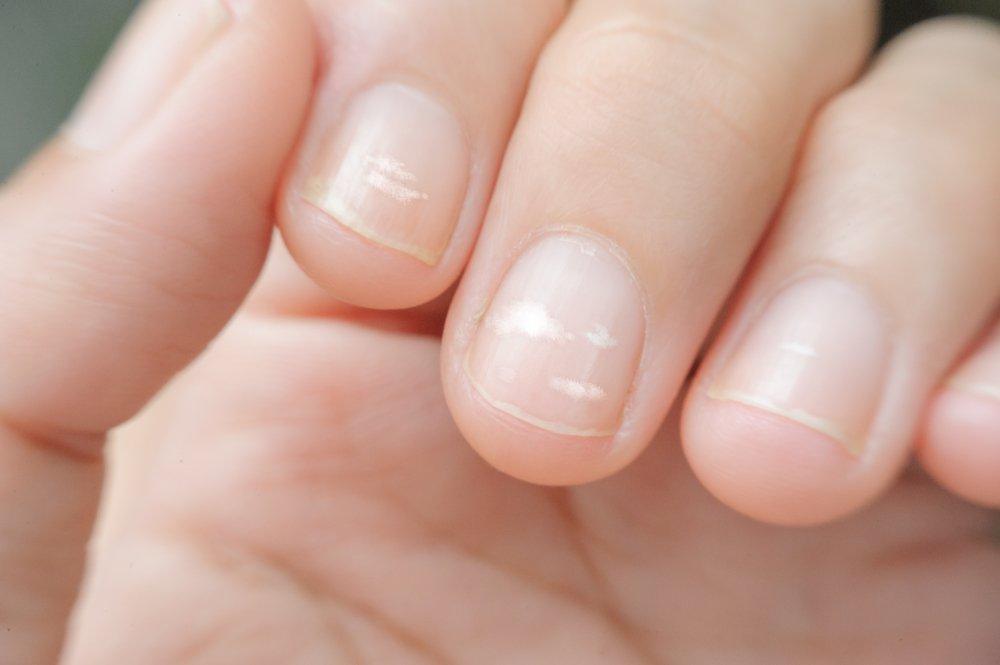Как проблемы со здоровьем отражаются на ногтях?