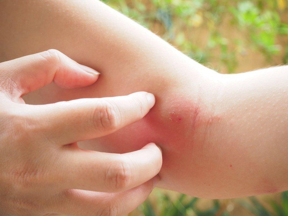 Виды укусов на теле человека