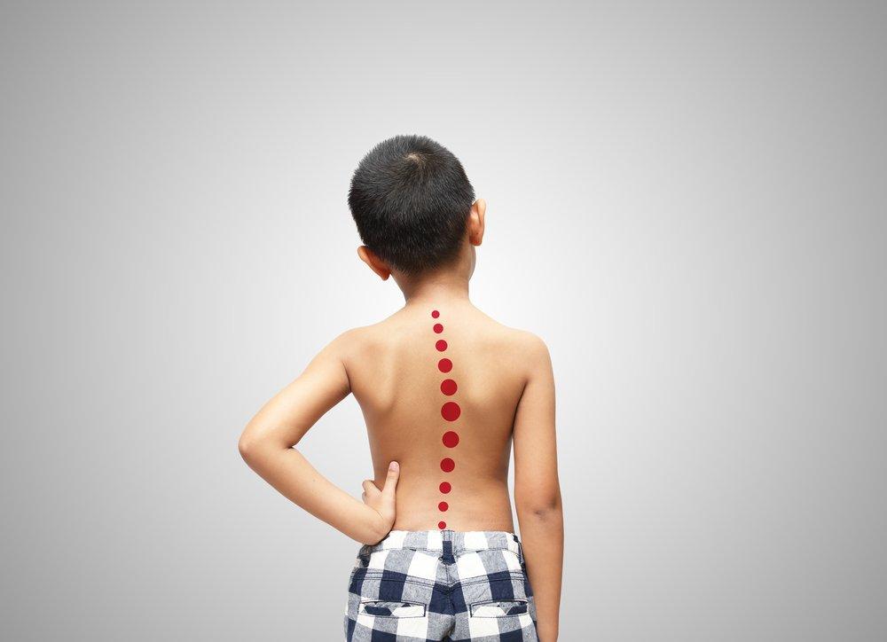 Сколиоз у ребенка: когда показан массаж