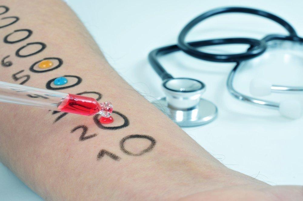 Аллерготестирование: нанесение аллергенов на кожу