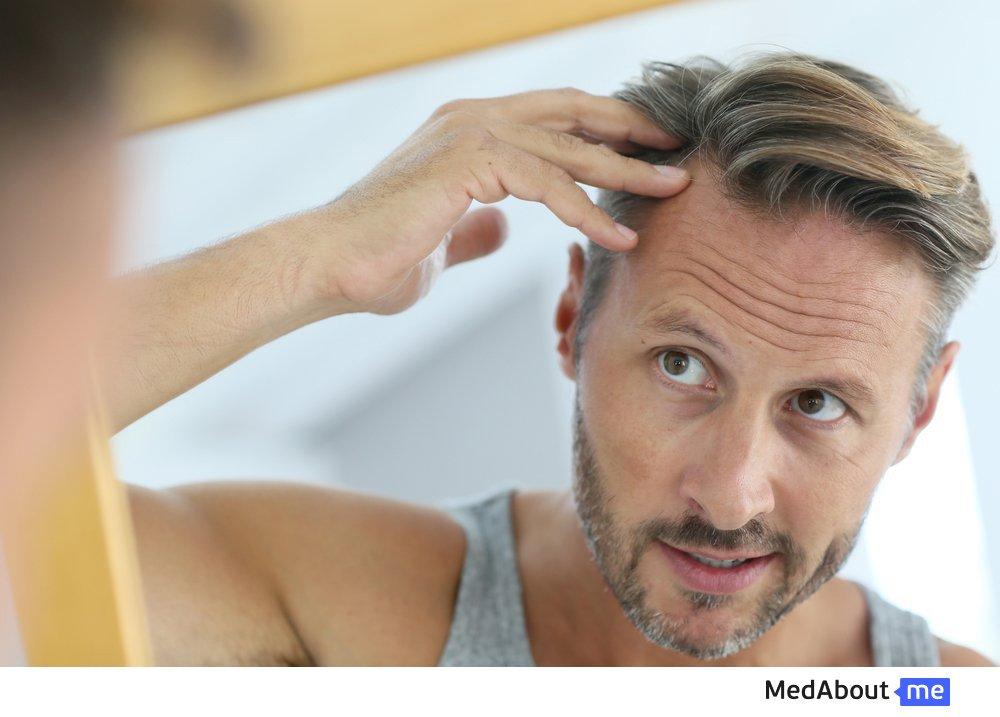 Выпадение волос у взрослых
