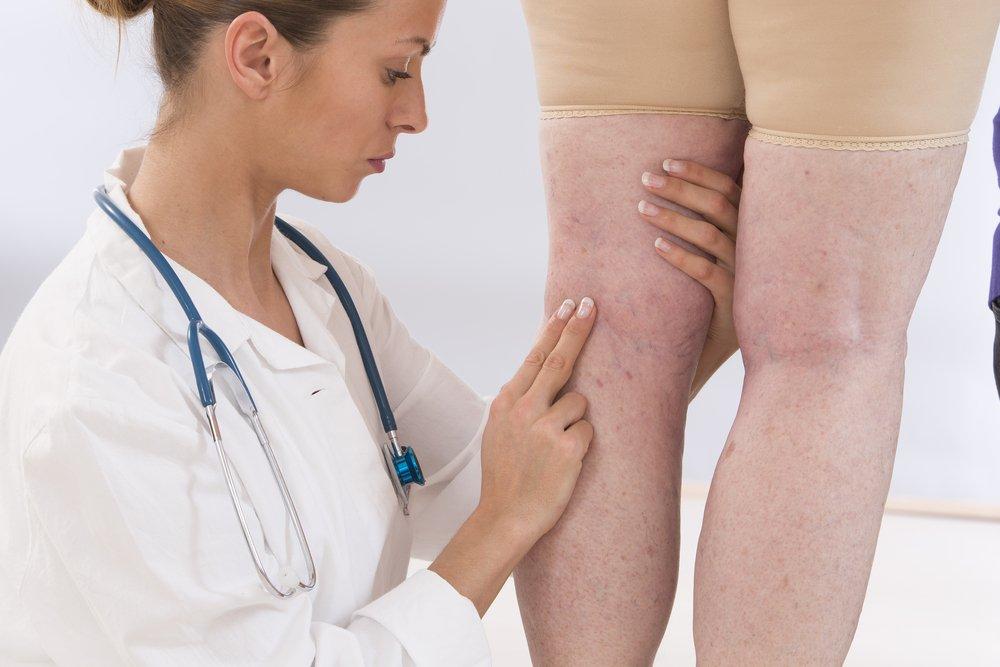 Симптомы и лечение расширенных вен на ногах: используемые лекарства