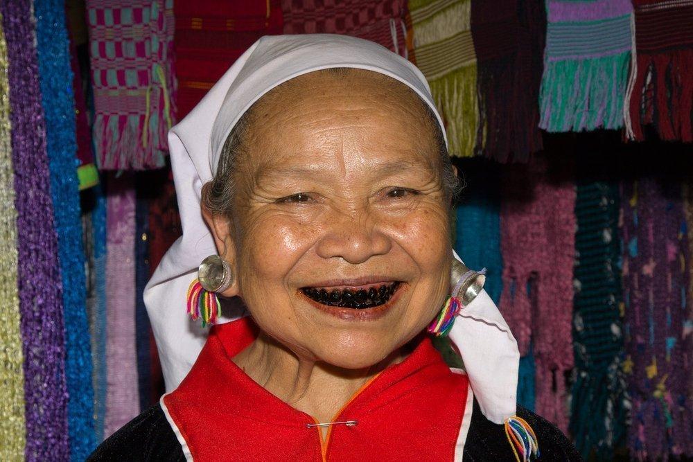 «Гнилые» зубы — красота и свидетельство достатка