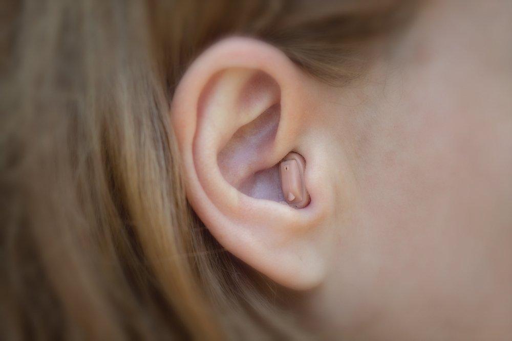Типы вкладышей слухового аппарата и технология RIC: советы врача