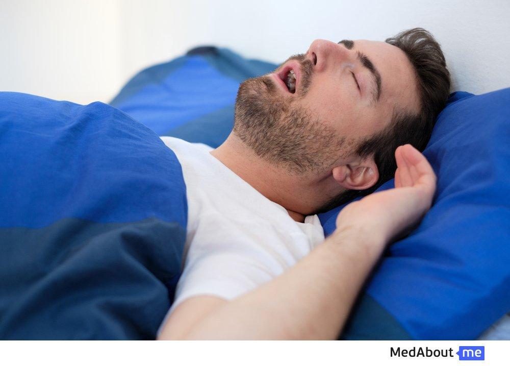 Что такое апноэ во время сна и чем оно опасно?