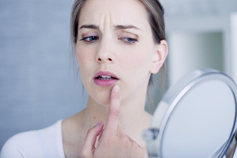 Лечение простуды на губах: важна каждая минута!