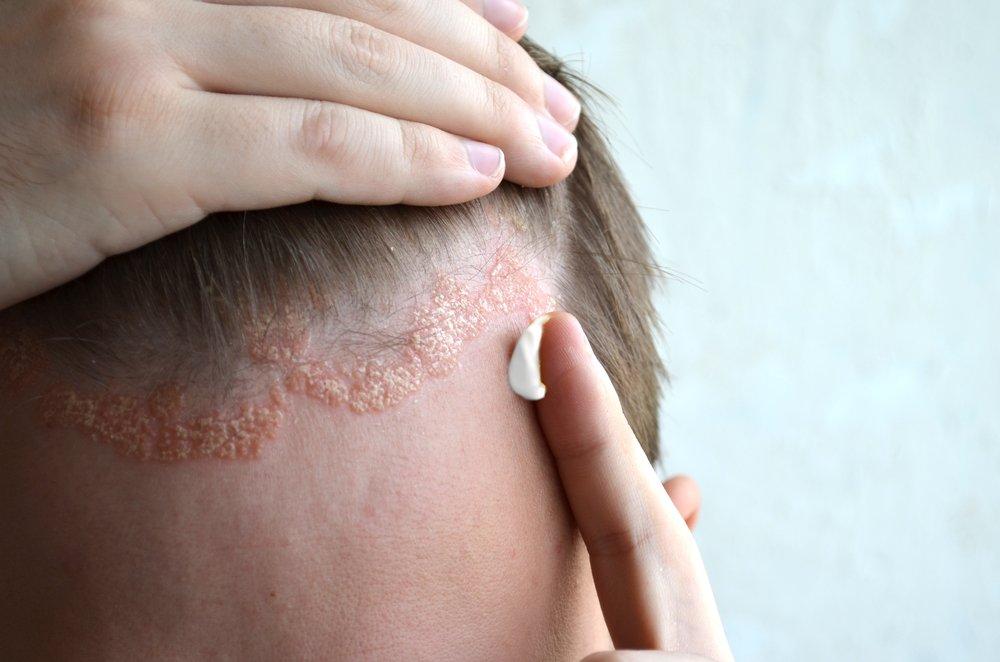 Принципы лечения себорейного дерматита