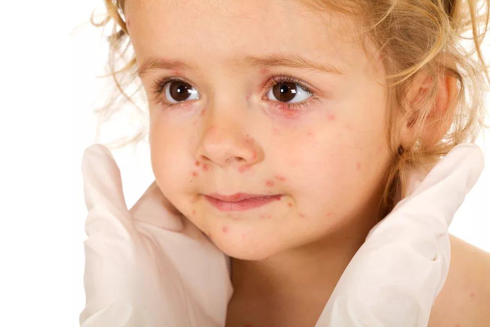 Механизм возникновения аллергии у детей