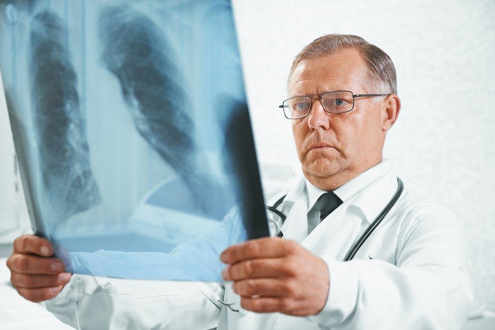 Формы вторичного туберкулеза