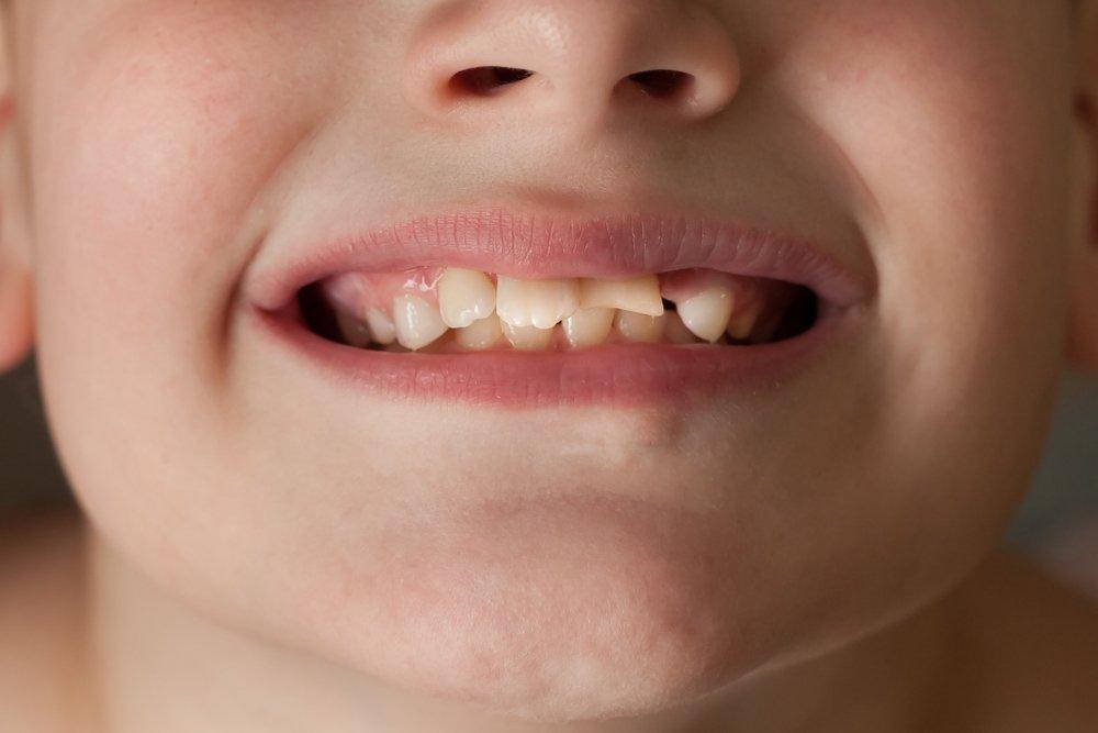 Виды травм зубов и их последствия