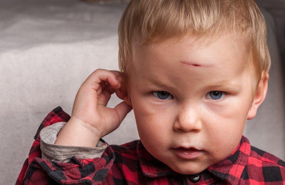 Когда кровотечение из пореза — повод для посещения травмпункта?