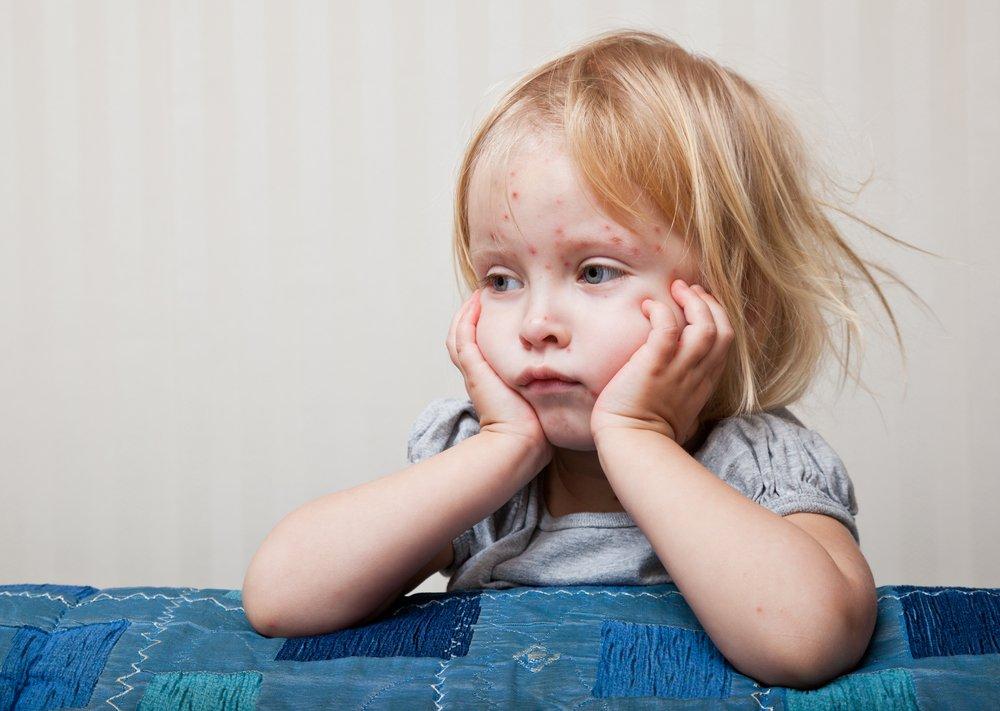 Детская крапивница: симптомы