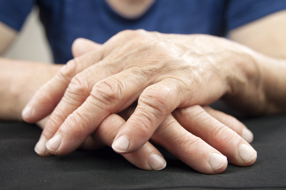 Как проявляется артрит пальцев рук?