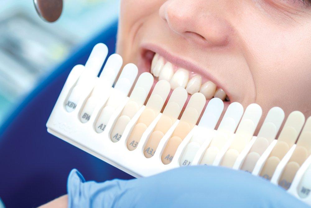 Естественные цвета зубов