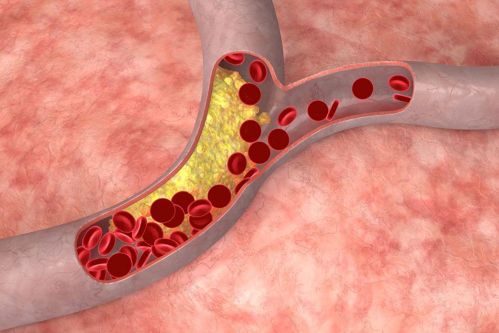 Поражения сосудов без атеросклероза артерий