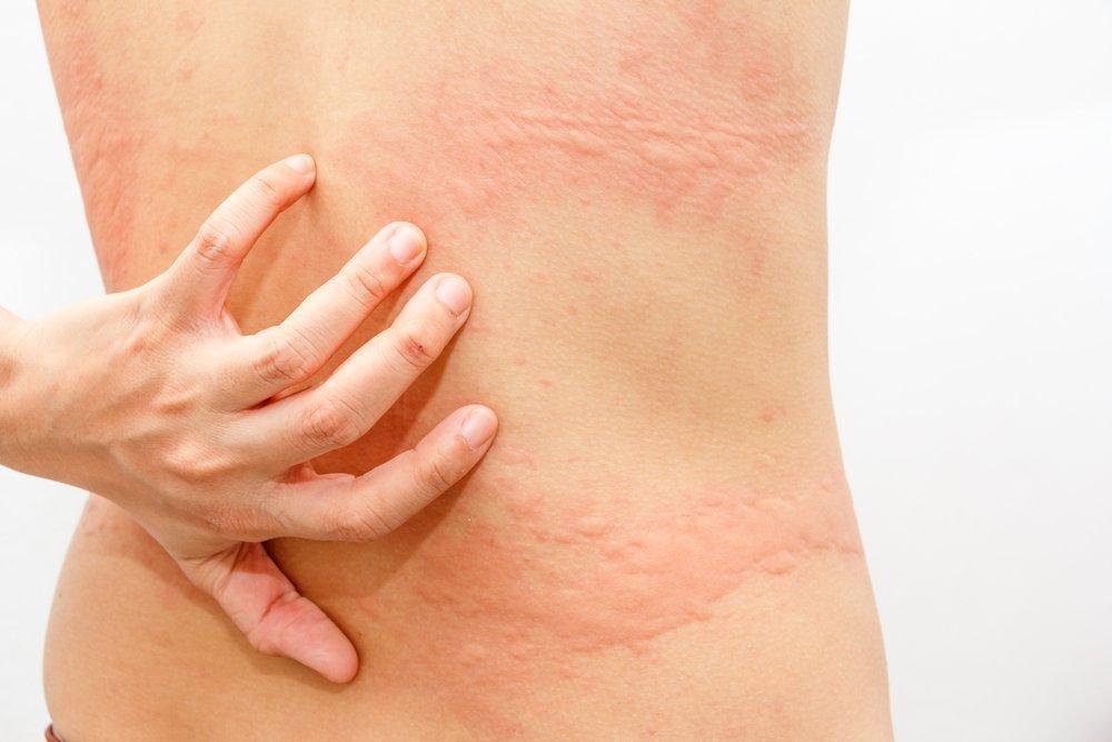 Миф 6: Возможно устранить лишь симптомы заболевания, но не его причину