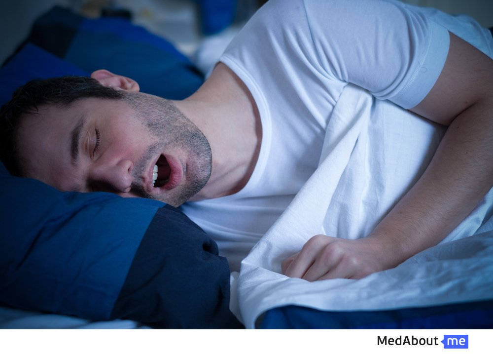 Синдром обструктивного апноэ: степени тяжести состояния