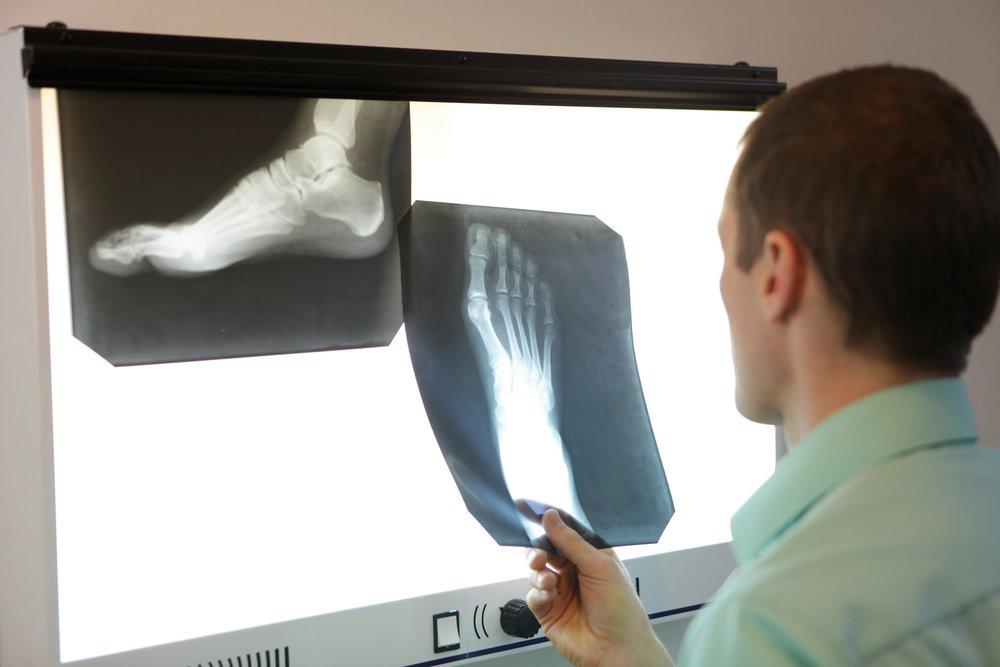 Диагностика переломов костей и их лечение