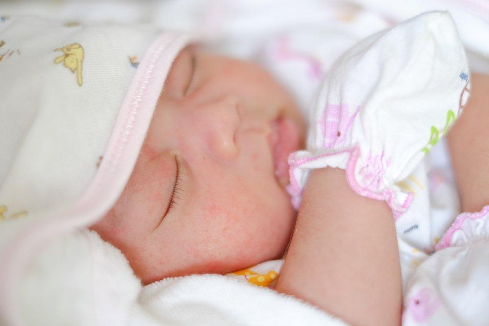 Формирование атопического дерматита в юном возрасте