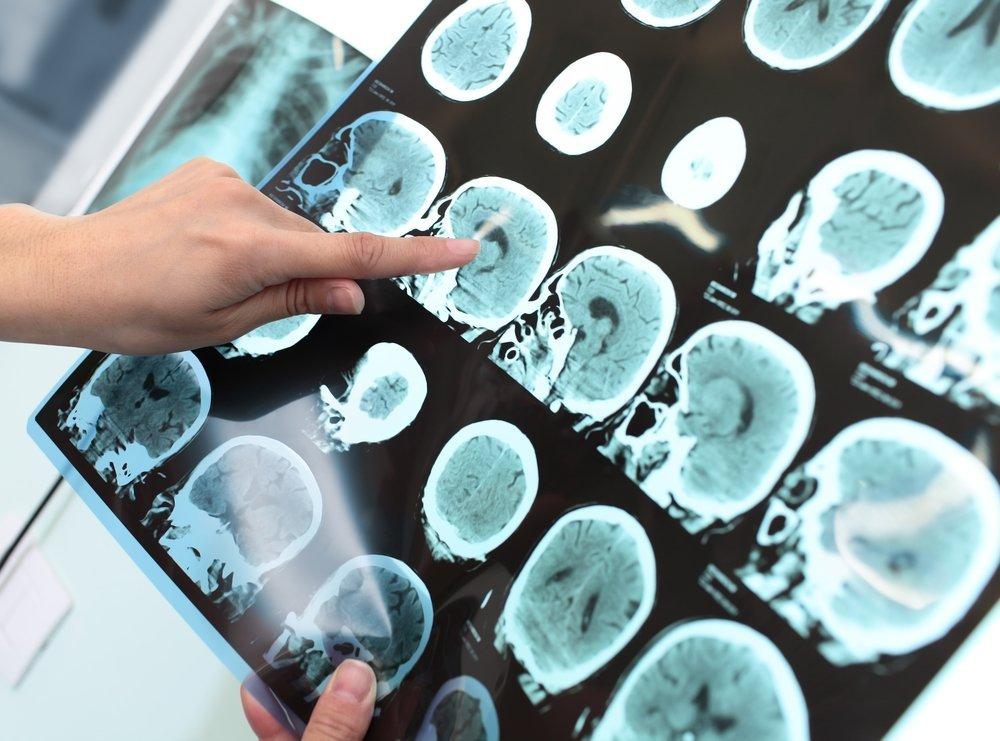 Новые методы диагностики