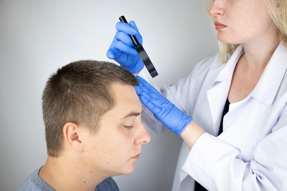 Почему возникает себорейный дерматит?
