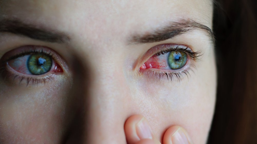 Симптомы хронического конъюнктивита в период ремиссии и обострения