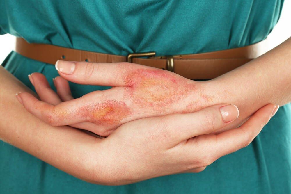 Симптомы, характерные для анетодермии