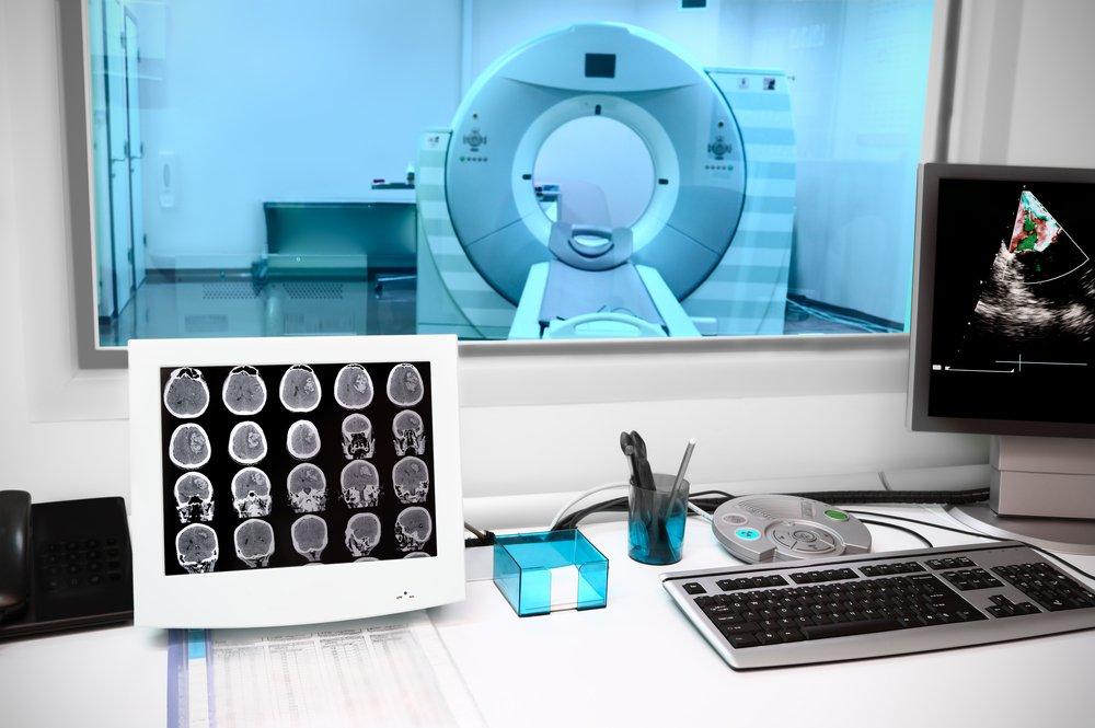 Изменения мозга при инсульте