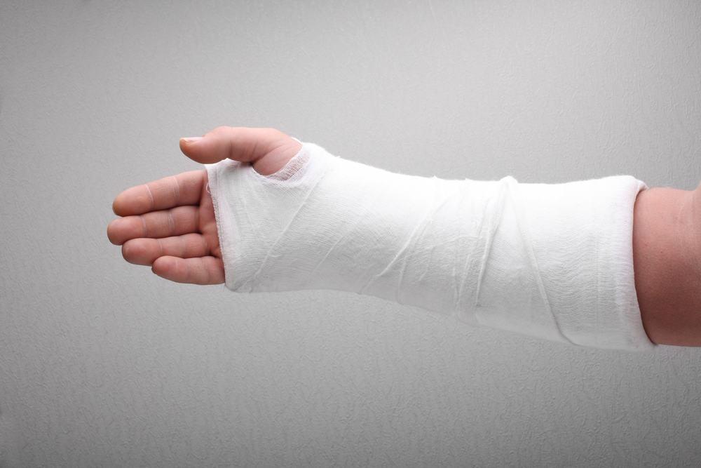 Лечение перелома и реабилитация после него