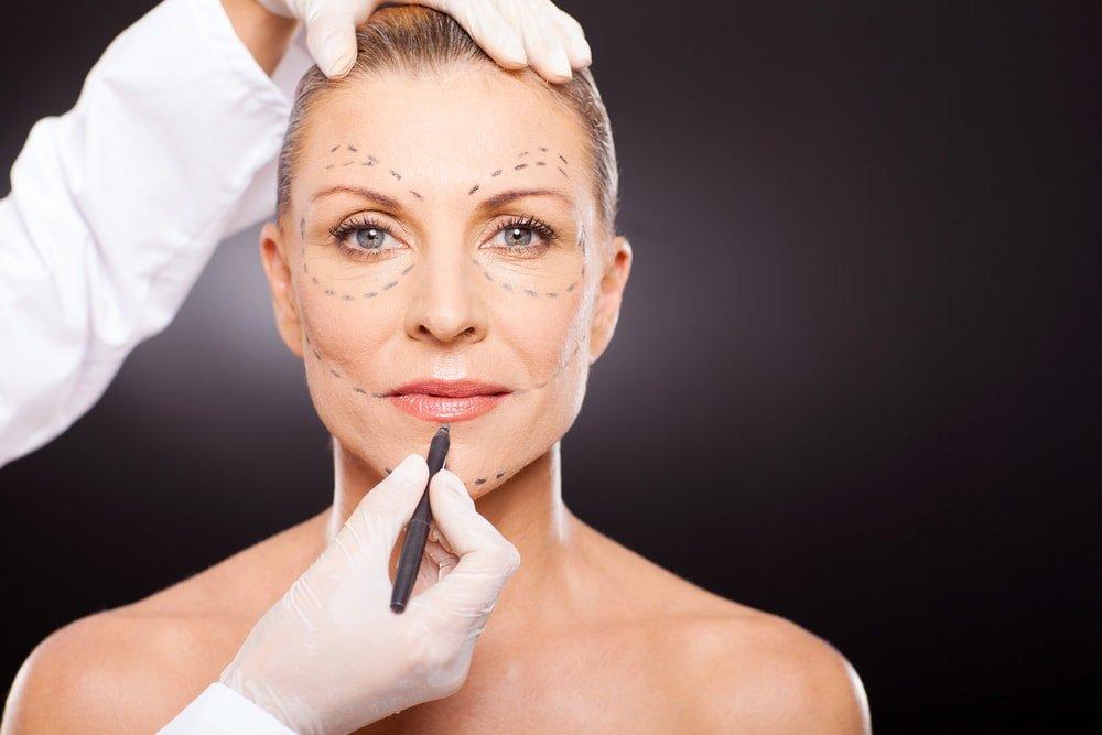 Основные принципы проведения операции по подтяжке кожи лица