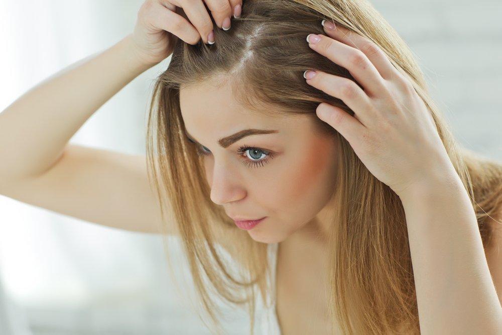 Выпадение волос у женщин: основные причины