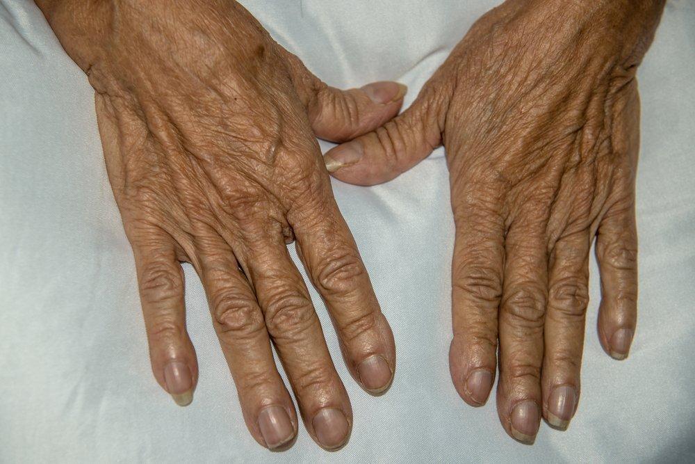 Описание деформации ногтей и фаланг пальцев