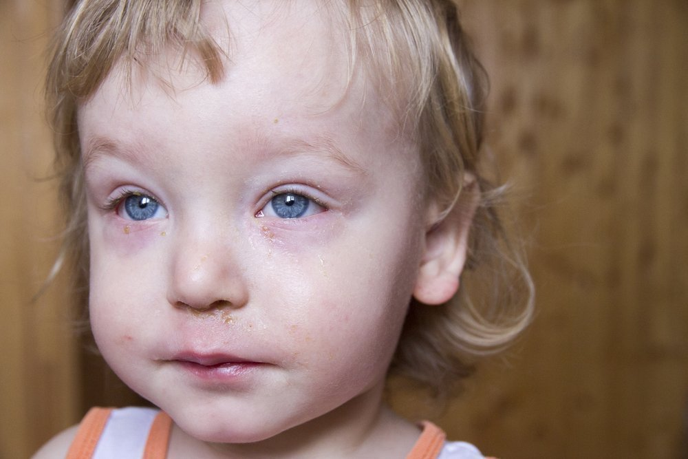 Почему слезятся глаза у ребёнка