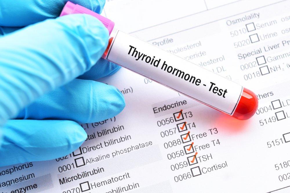 Методы диагностики и лечения гипотиреоза