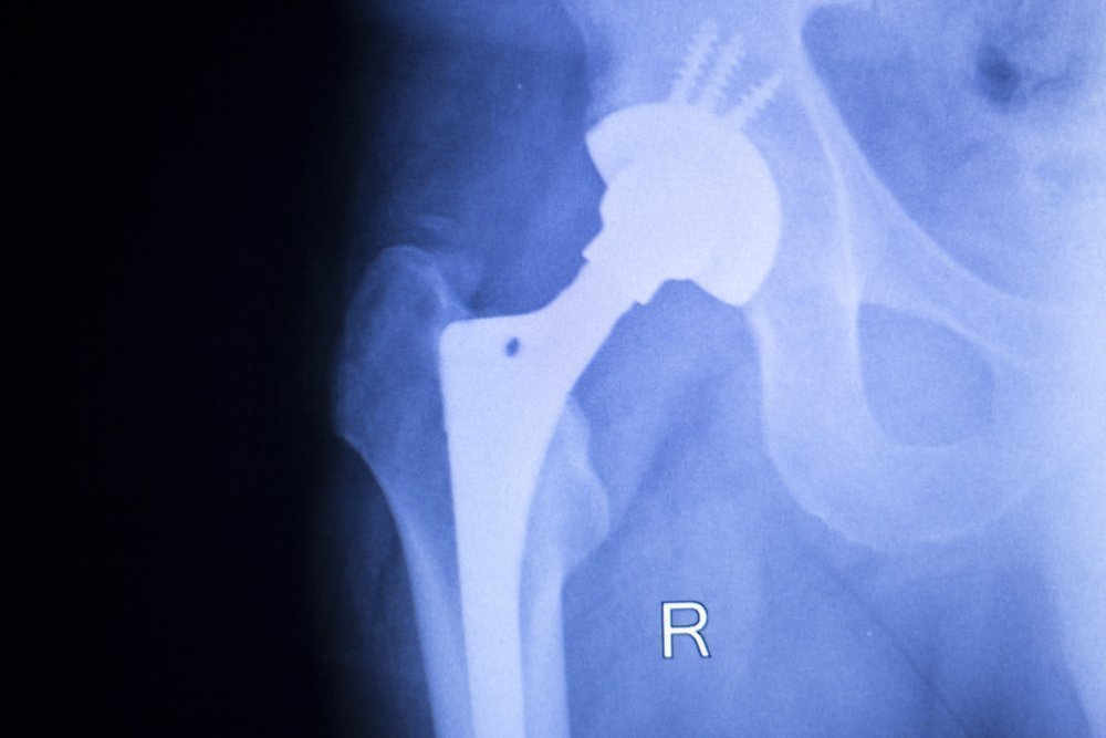 Эндопротезирование суставов: вчера, сегодня, завтра