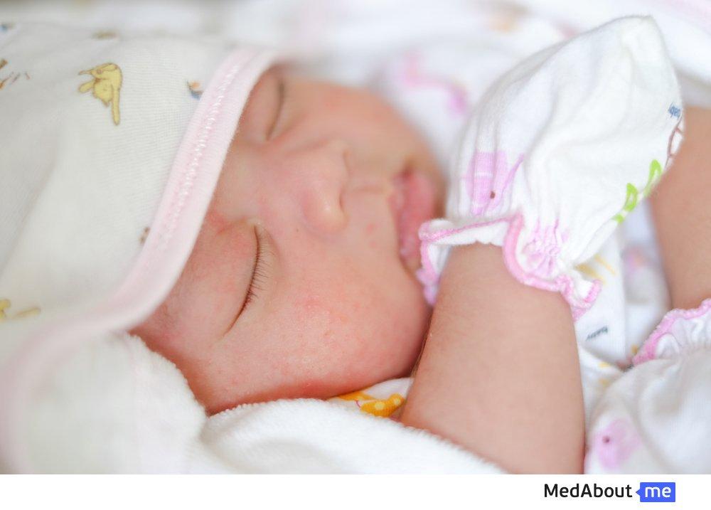 Диатез у новорожденных