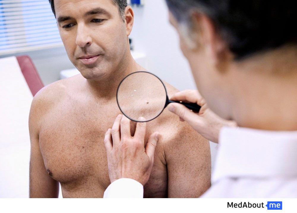 Вирус папилломы человека у взрослых