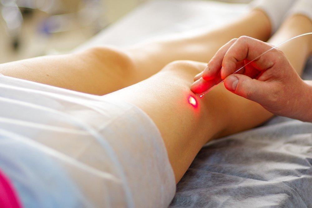 Точки при лечения иглотерапией