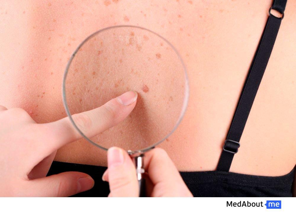 Пигментно-папиллярная дистрофия кожи