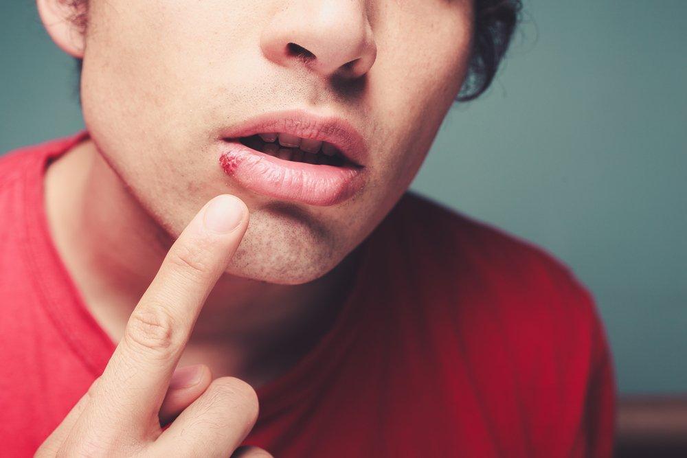 Когда и почему проявляется «простуда» на губах