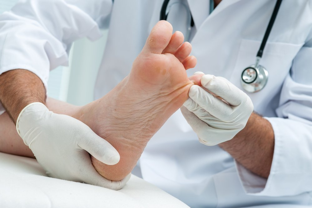 Лечение грибка на коже: советы дерматолога