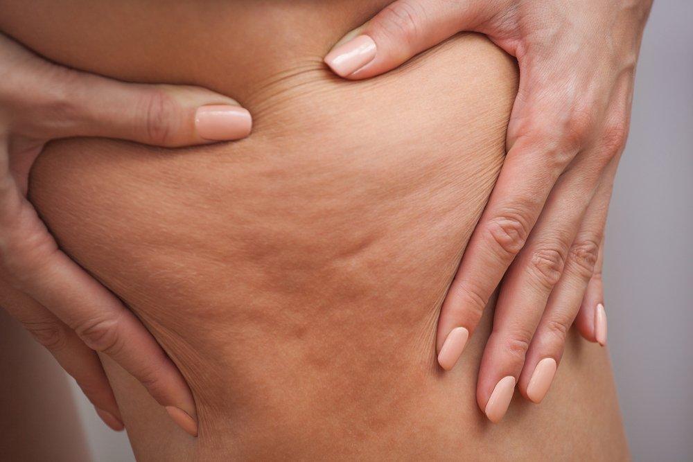 1. Появление целлюлита вызвано токсинами