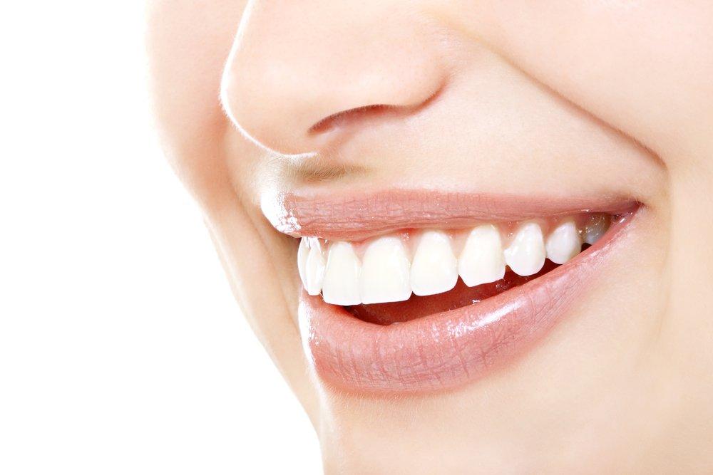 Красота и здоровье зубов: плюсы и минусы процедуры отбеливания
