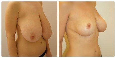 Остаются ли после операции рубцы на теле женщины?