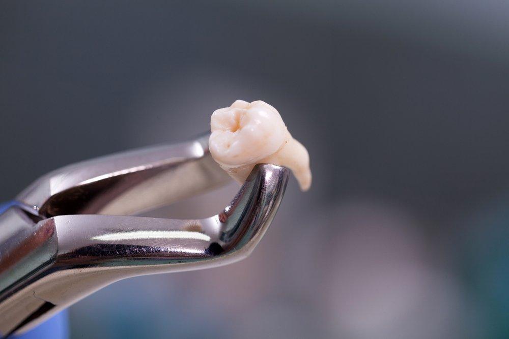 После удаления зуба: профилактика