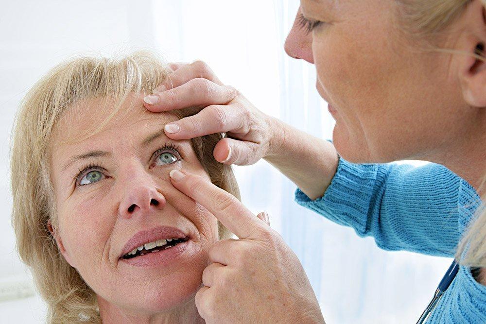 Симптомы конъюнктивита у взрослых